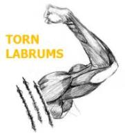 Torn Labrums